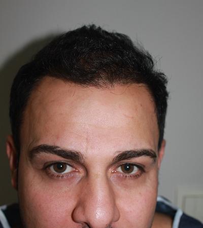 Hair Transplant 2 After