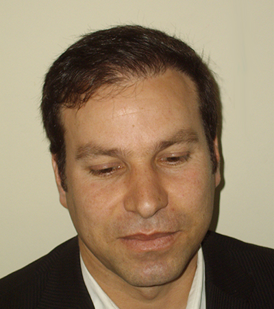 Hair Transplant 5 After