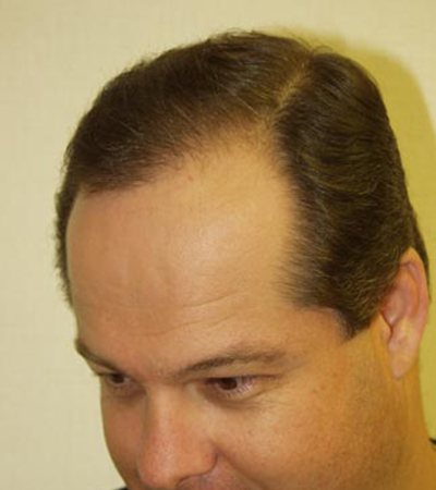 Hair Transplant 7 After