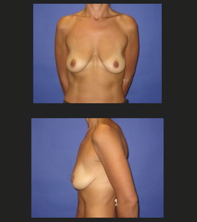 Breast Lift 1 Before