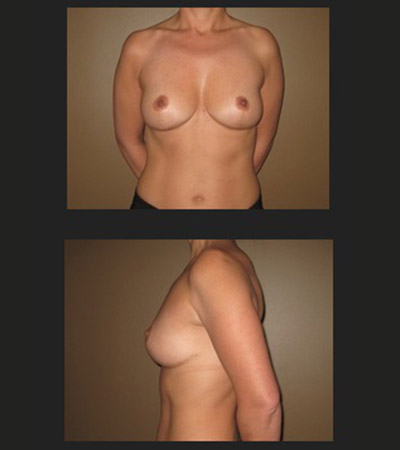Breast Lift 1 After