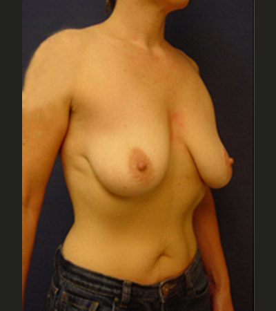 Breast Lift 2 Before