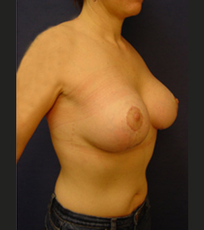 Breast Lift 2 After