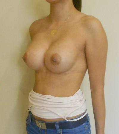 Breast Augmentation 1 After