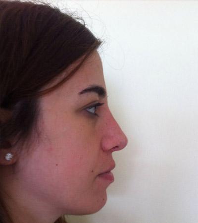 Rhinoplasty 3 After