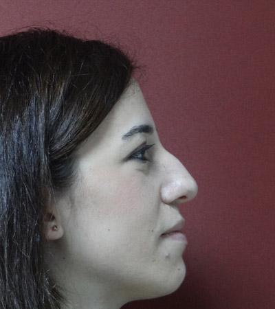 Rhinoplasty 3 Before
